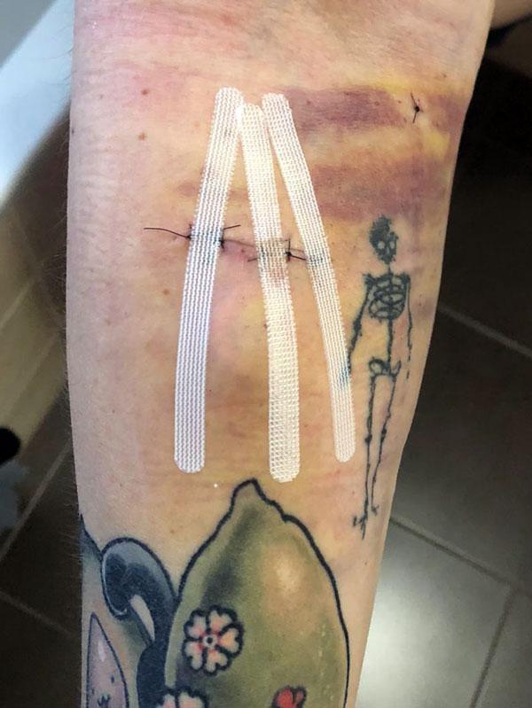 Kaputter Arm